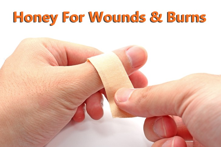 honey for wounds and burns
