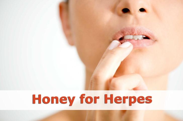 honey for herpes