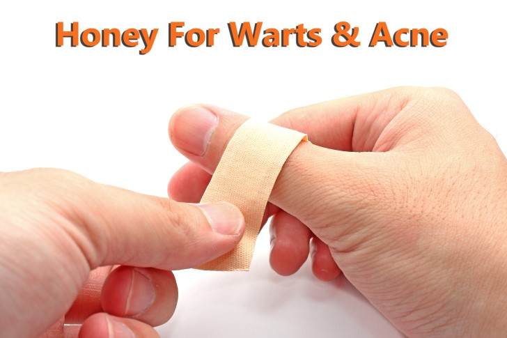 honey for warts