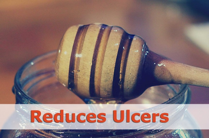 honey reduces ulcers