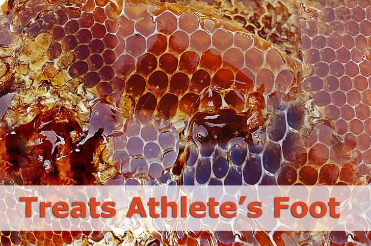 treats-athletes-foot